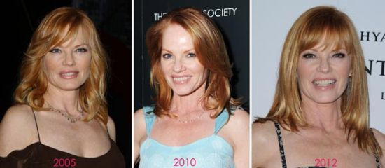 Marg Helgenberger plastic surgery before and after