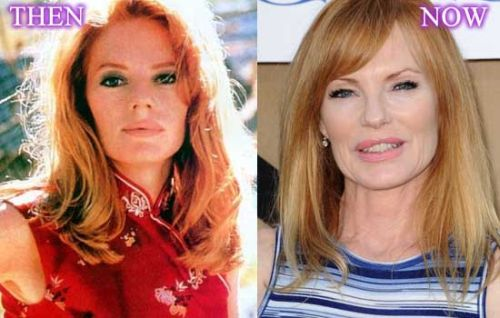 Marg Helgenberger plastic surgery photo