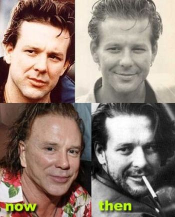 Mickey Rourke plastic surgery procedures