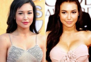 Naya Rivera Plastic Surgery: The Moderate Procedures