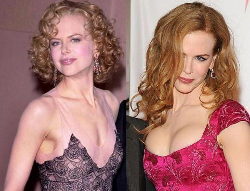 Nicole Kidman breast implants before after
