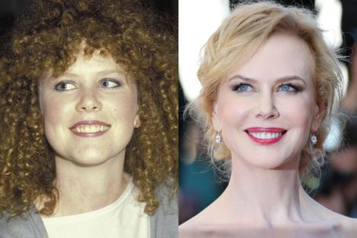 Nicole Kidman then and now