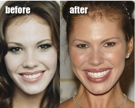 Nikki Cox Plastic Surgery Before After