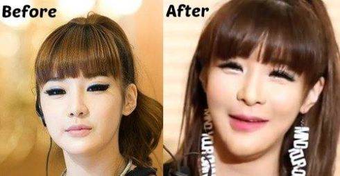 Park Bom chin implant before and after