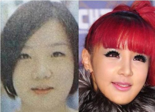 Park Bom plastic surgery beforeand after