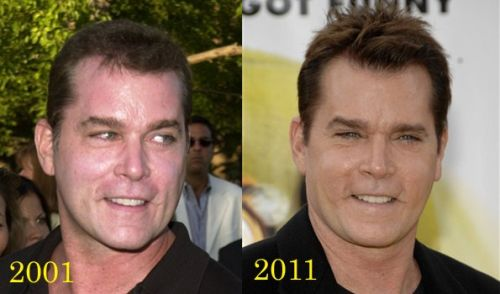 Ray Liotta Plastic Surgery - A Failed Surgery