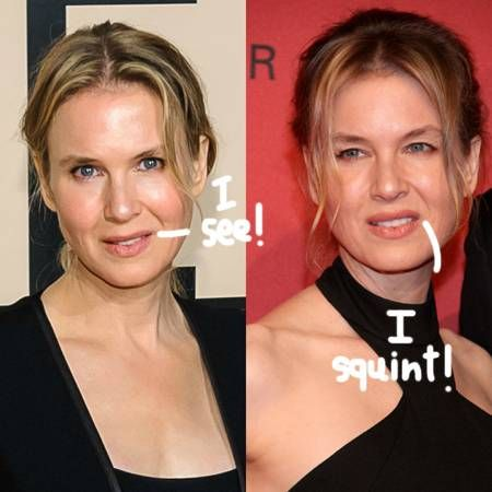 Renee Zellweger plastic surgery before after