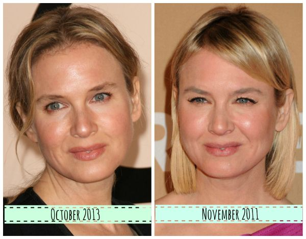 Renee Zellweger now and then