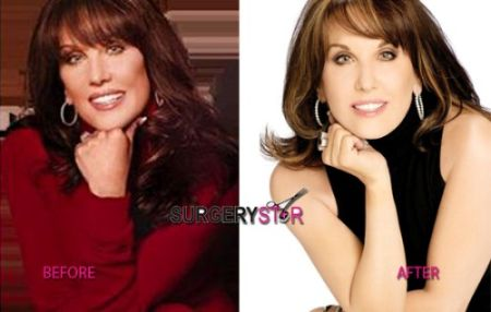 Robin McGraw plastic surgery before after