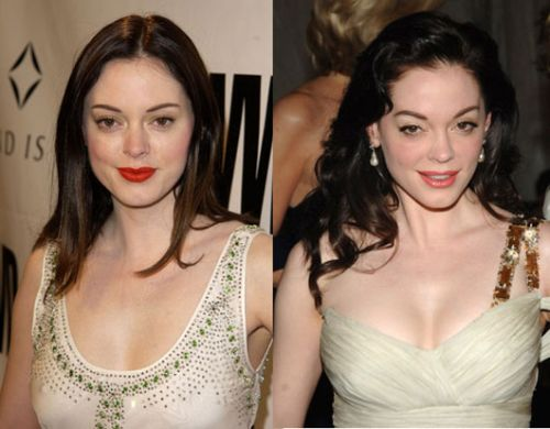Rose Mcgowan breast implants before and after