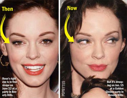 Rose Mcgowan plastic surgery gone wrong