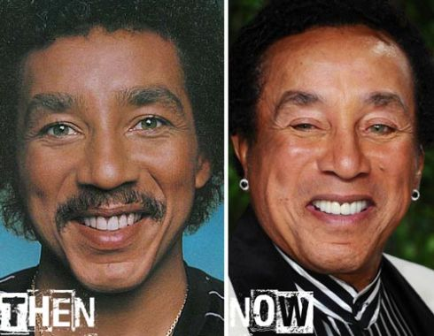 Smokey Robinson plastic surgery before after