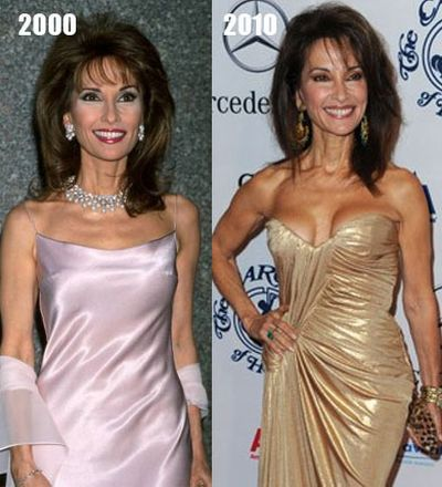 Susan Lucci plastic surgery procedures