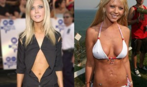 Tara Reid Plastic Surgery Gone Wrong – Before and After Pics