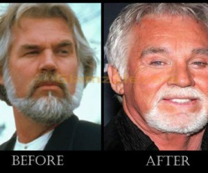 Kenny Rogers Plastic Surgery Was A Success