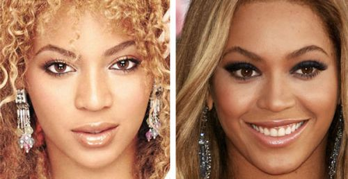 Beyoncé Knowles Nose Job