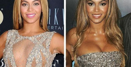 Beyonce plastic surgery before after