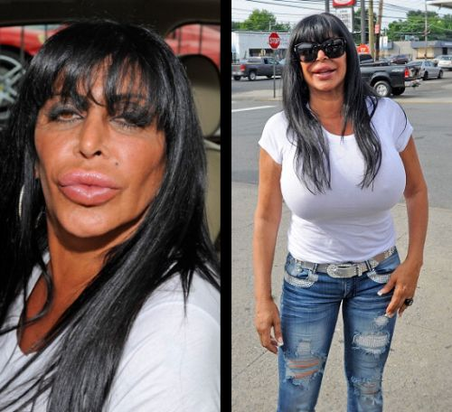 Big Ang plastic surgery disaster