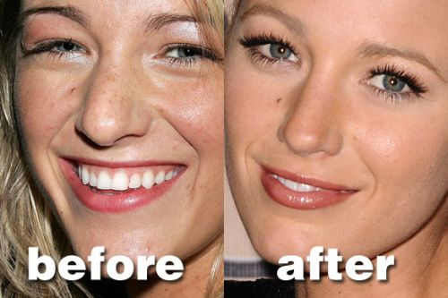 Blake Lively nose job before after