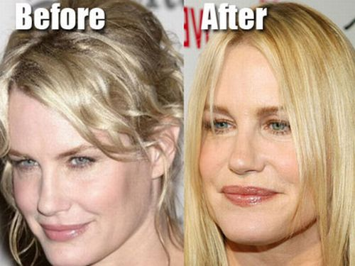 Daryl Hannah plastic surgery before and after