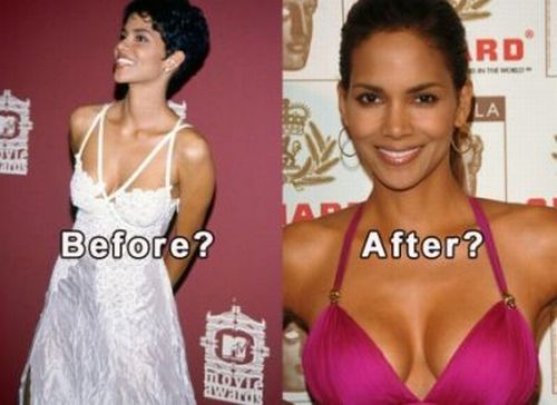 Halle Berry plastic surgery before and after
