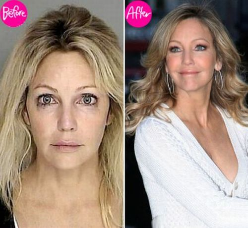Heather Locklear plastic surgery before & after