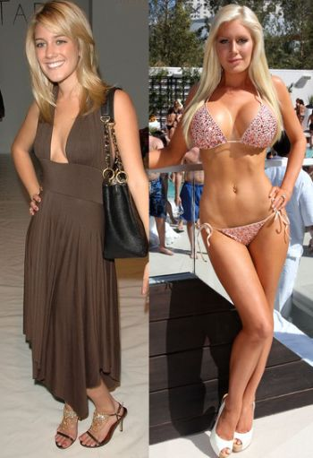 Heidi Montag plastic surgery gone wrond