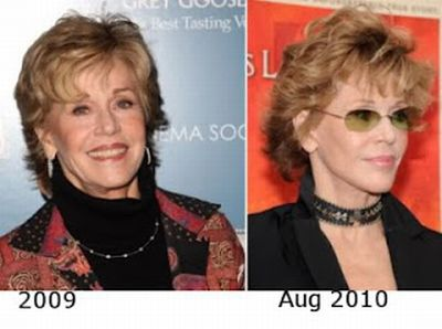 Jane Fonda plastic surgery pic