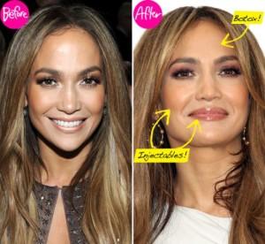 Jennifer Lopez Plastic Surgery – Lip Fillers & Botox