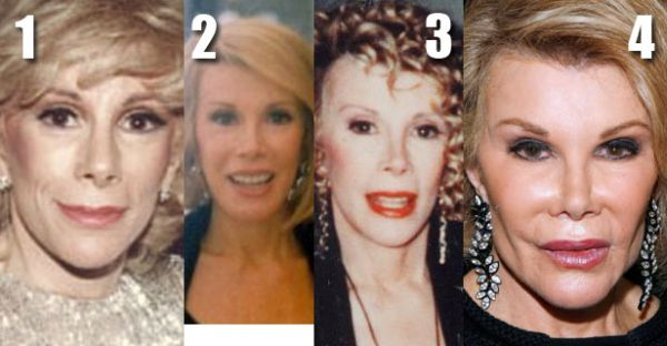 Joan Rivers plastic surgery gone wrong