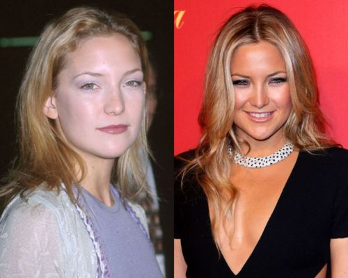 Kate Hudsonplastic surgery before and after