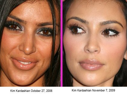 Kim Kardashian nose job before and after