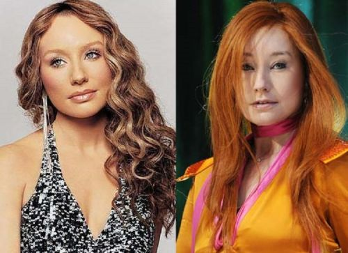 Tori Amos plastic surgery before after