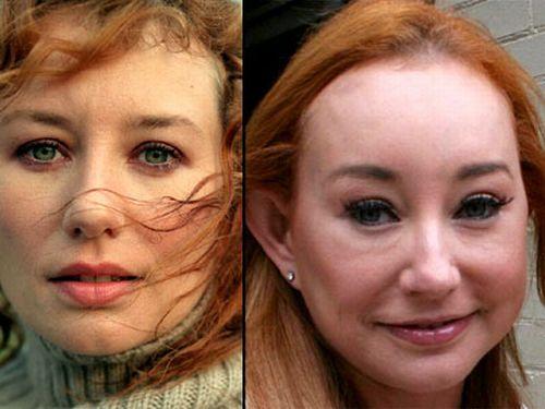 Tori Amos plastic surgery disaster