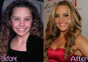 Amanda Bynes Reveals All About Her Plastic Surgeries