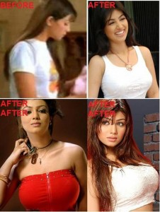 Ayesha Takia Plastic Surgery – A Natural Beauty?