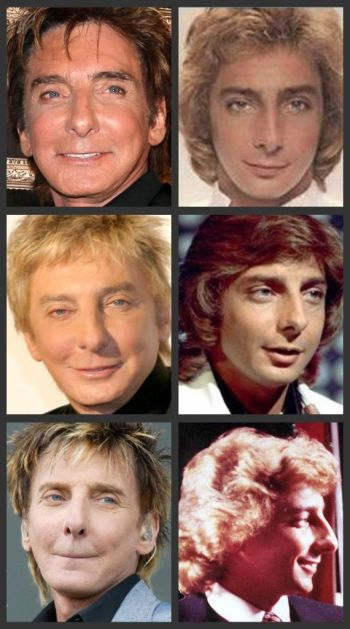 Barry Manilow plastic surgery photos