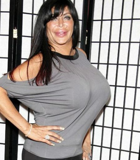 Big Ang after breast implants