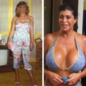 Big Ang Plastic Surgery is a Nightmare