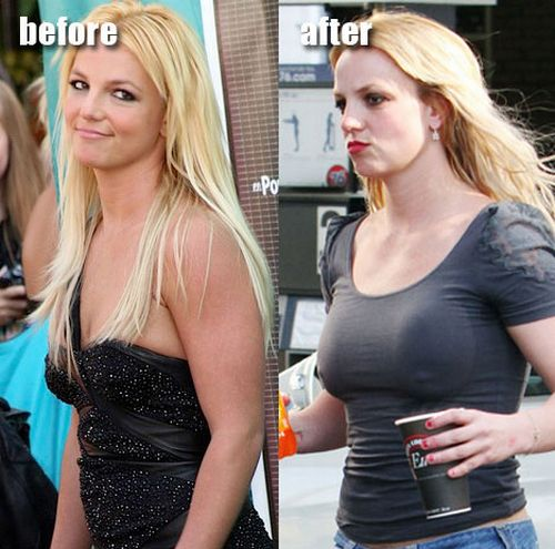 Britney Spears' breast implants before and after