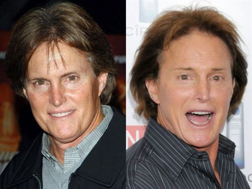 Bruce Jenner plastic surgery gone wrong!
