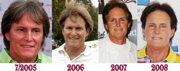 Bruce Jenner's plastic surgery changes