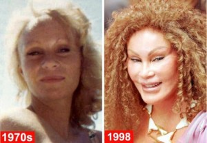 Catwoman (Jocelyn Wildenstein) Plastic Surgery Disaster Pictures