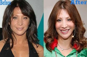 Cheri Oteri Plastic Surgery Before and After Pictures