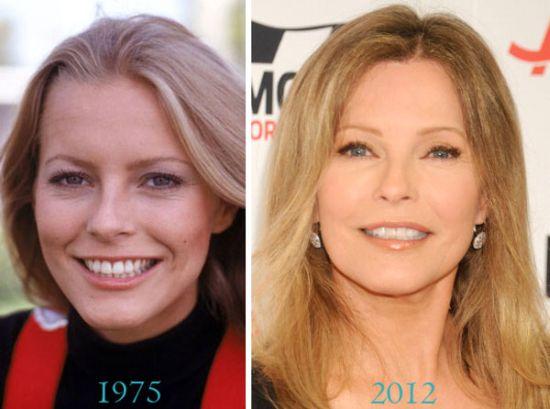 Cheryl Ladd plastic surgery