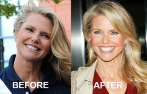 Christie Brinkley Plastic Surgery Rumors True?