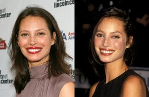 Christy Turlington Plastic Surgery Will Never Happen