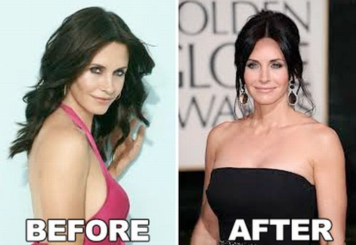 Courtney Cox breast implants before and after