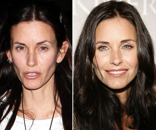 Courtney Cox plastic surgery before and after