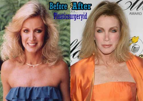Donna Mills plastic surgery before and after